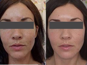 acne treatment Canterbury Kent