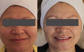 Microdermabrasion facial Canterbury facial Ipswich