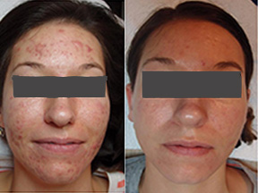 acne treatment Canterbury Kent