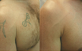 Laser Tattoo Removal Canterbury