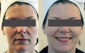 Microdermabrasion facial Canterbury